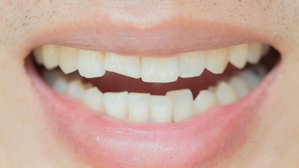 broken-tooth-kelowna