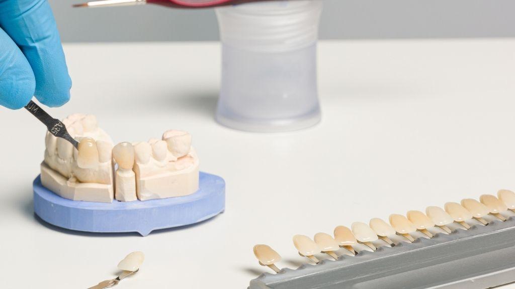 dental-veneers-west-kelown-palmer