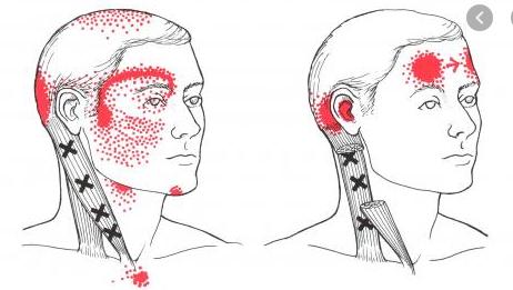 facial-tmj-pain-west-kelowna