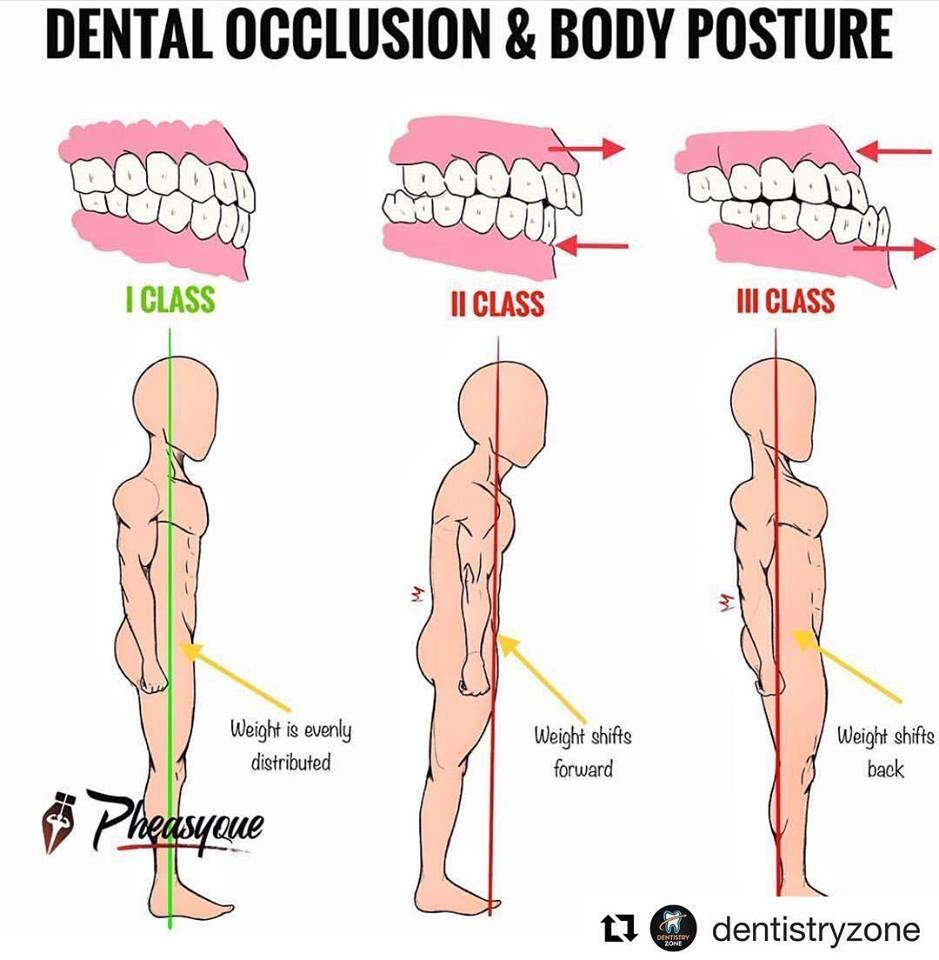 posture-and-tmj-west-kelowna