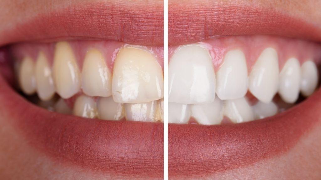 teeth-whitening-west-kelowna-palmer