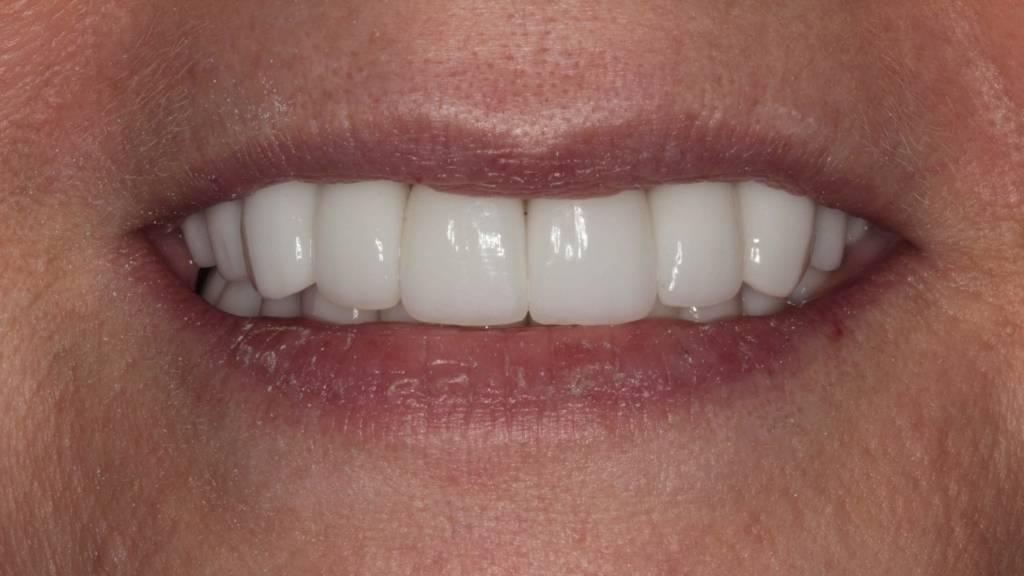 dental veneers after west kelowna