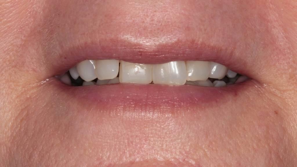 dental veneers before west kelowna