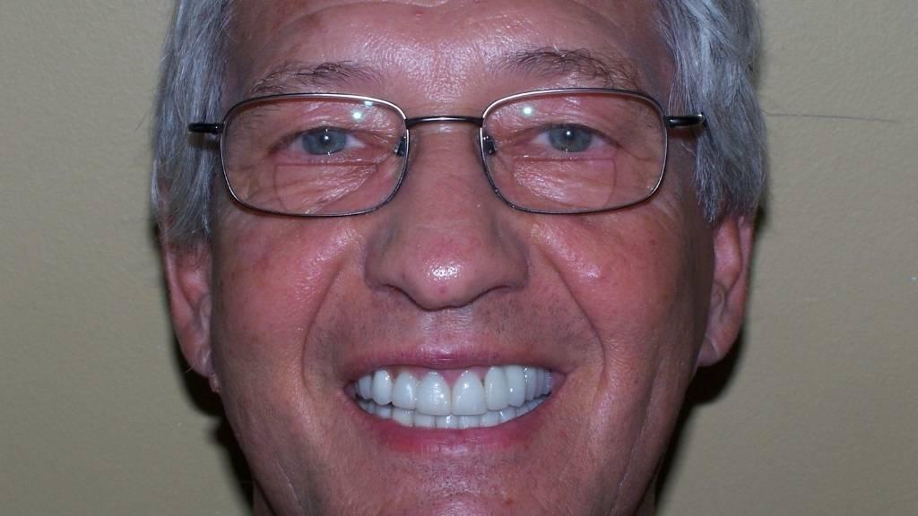 after before dentist west kelowna