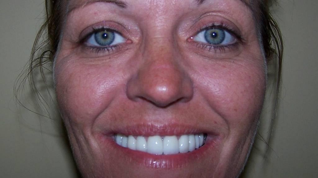 dentist west kelowna after before
