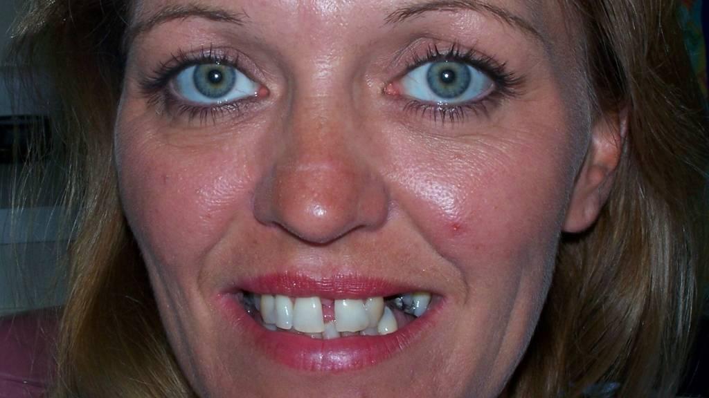 dentist west kelowna before after